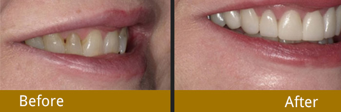 before-after-4.1