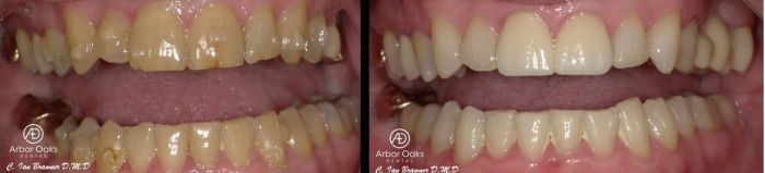 D.U. was unhappy with this smile and wanted to replace his missing teeth. His form and function have significantly improved through Invisalign therapy, front tooth crowns, and fixed bridges. He now has a smile he is confident showing off!