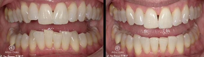 In preparation for an upcoming wedding, J.K. wanted to straighten her crowded teeth. Clear aligner treatment gave her the confidence to show off to her newly aligned teeth.