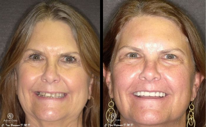 Missing teeth and years of dental trauma left Val unhappy and insecure with her smile. Upper and lower full arch rehabilitation gave Val the smile she has always wanted.