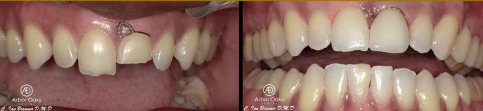 An accident fractured D.D.'s front tooth so badly it could not be saved. Dr. Brawner's implant therapy and a final crown constructed D.D's front tooth to be even better than before.