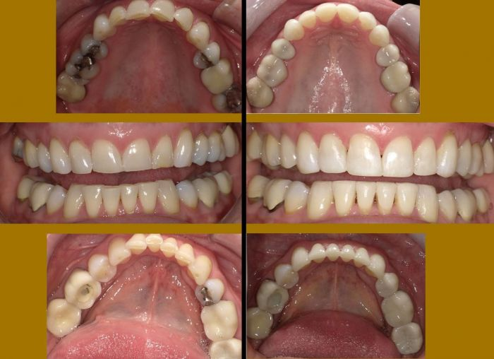 H.H. was dealing with dental issues of failing and fracture on existing fillings, Severe wear, and mal occlusion. After completion of orthodontics, Crowns, and Composite veneers, her form, function, and esthetics were restored.