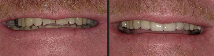 Full mouth reconstruction with crowns